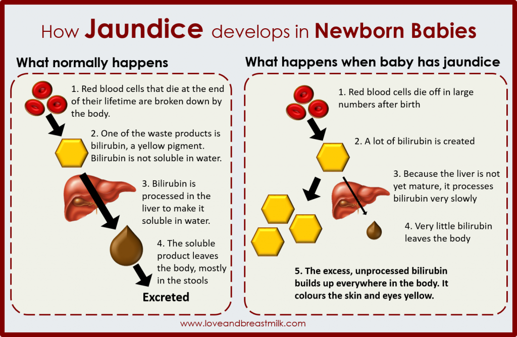 Jaundice In Babies